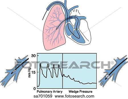 Stock Illustration of Heart/lung illustration of placement of Swan
