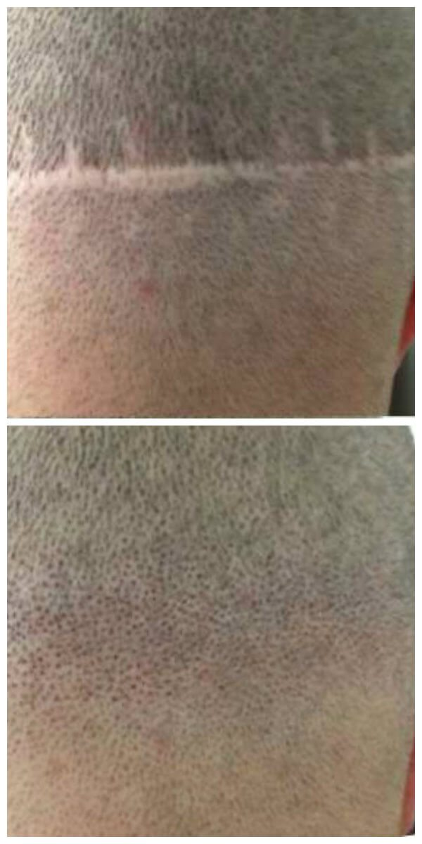 hair-transplant-scar-treatment