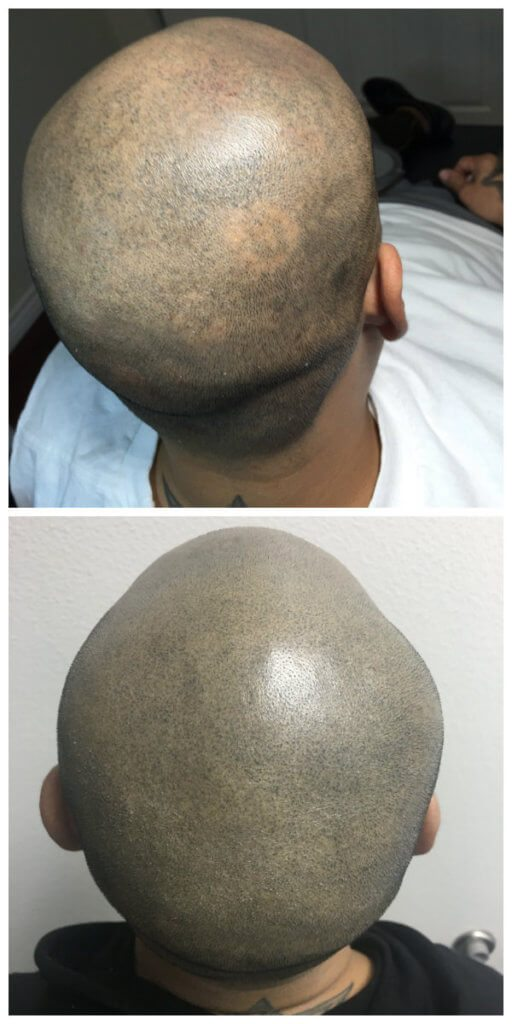 Treating Alopecia with SMP