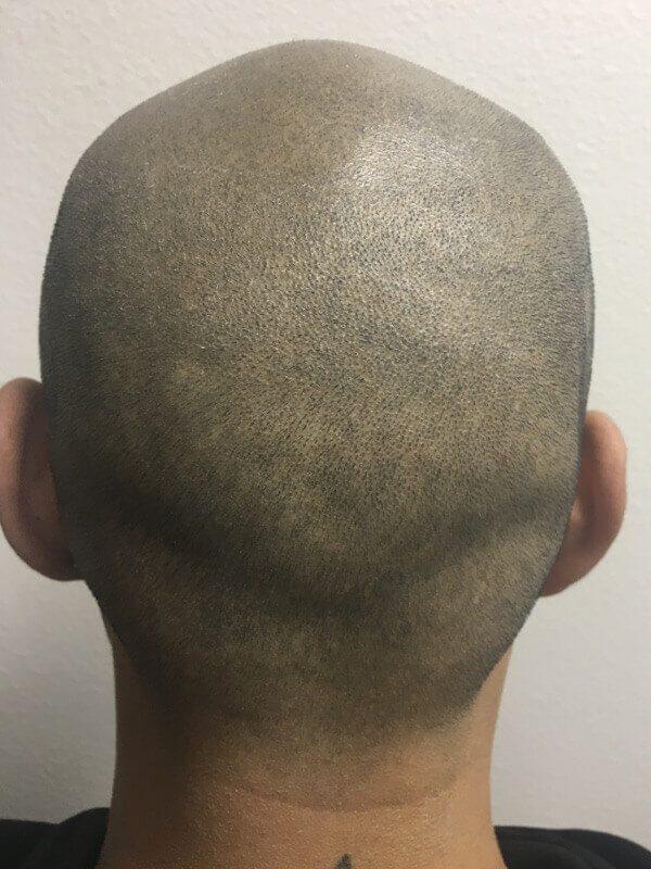 smp-correction-after-back
