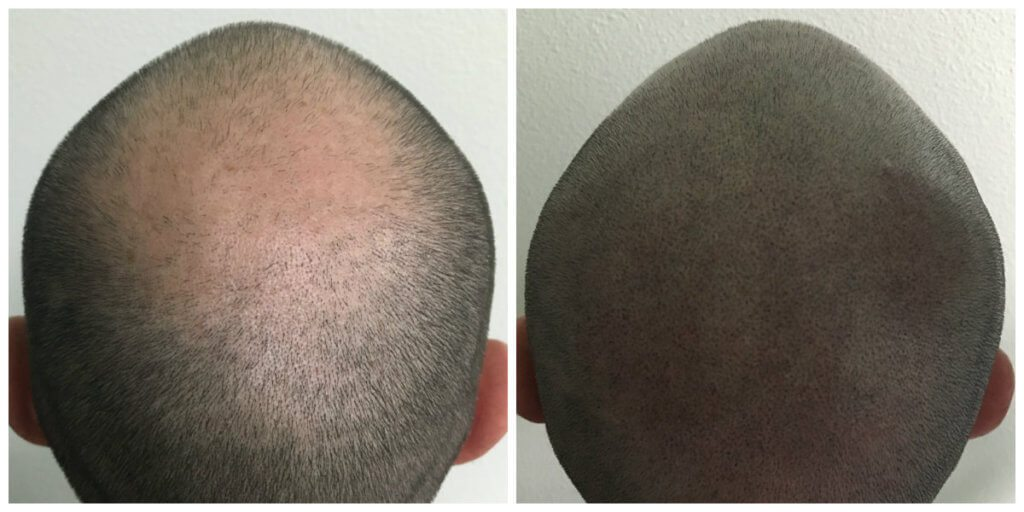 Stage 5 hair loss before and after