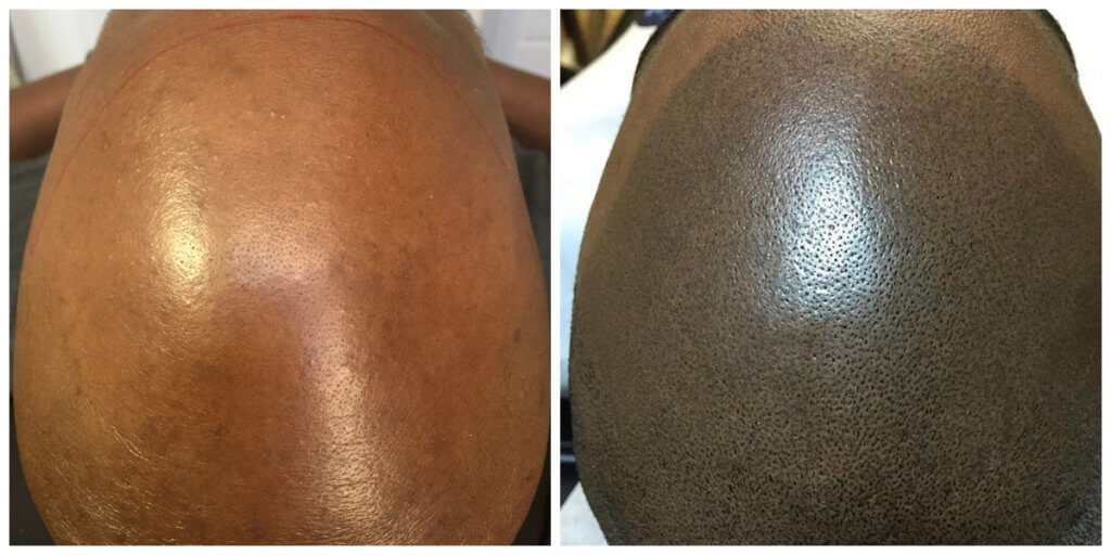 DO before and after scalp micropigmentation