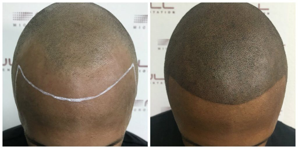 Jason Before and After 2 FULL Micropigmentation