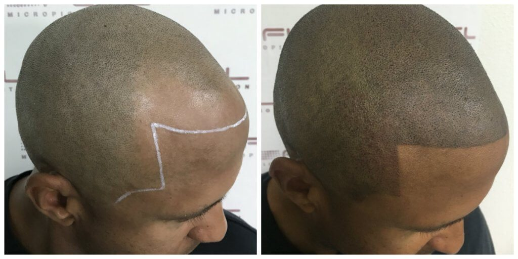 Jason Before and After FULL Micropigmentation