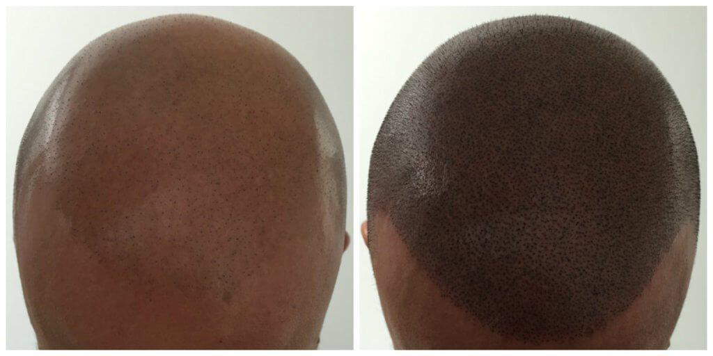 Joe Hair Loss Treatment