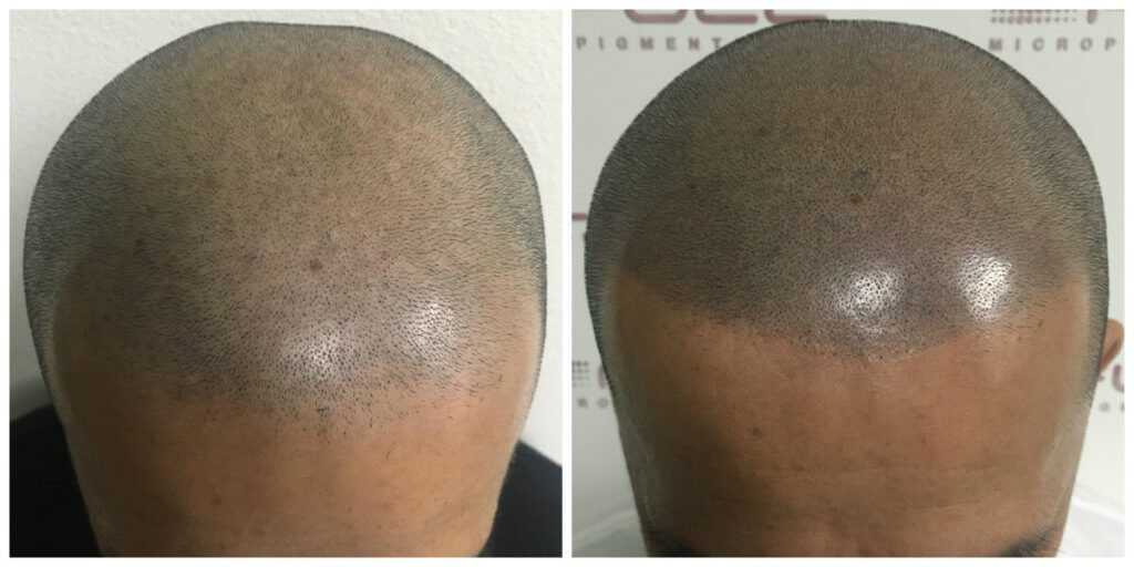 Lucas front before and after micropigmentation
