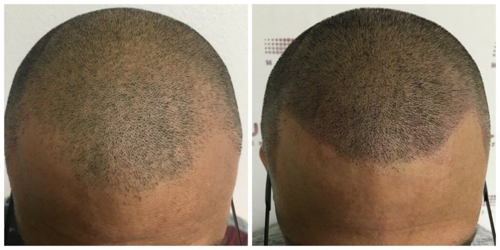 Stage 3 Hair Loss Before and After*
