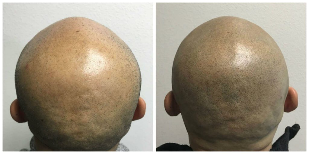 Stage 7 Hair Loss Before and After*