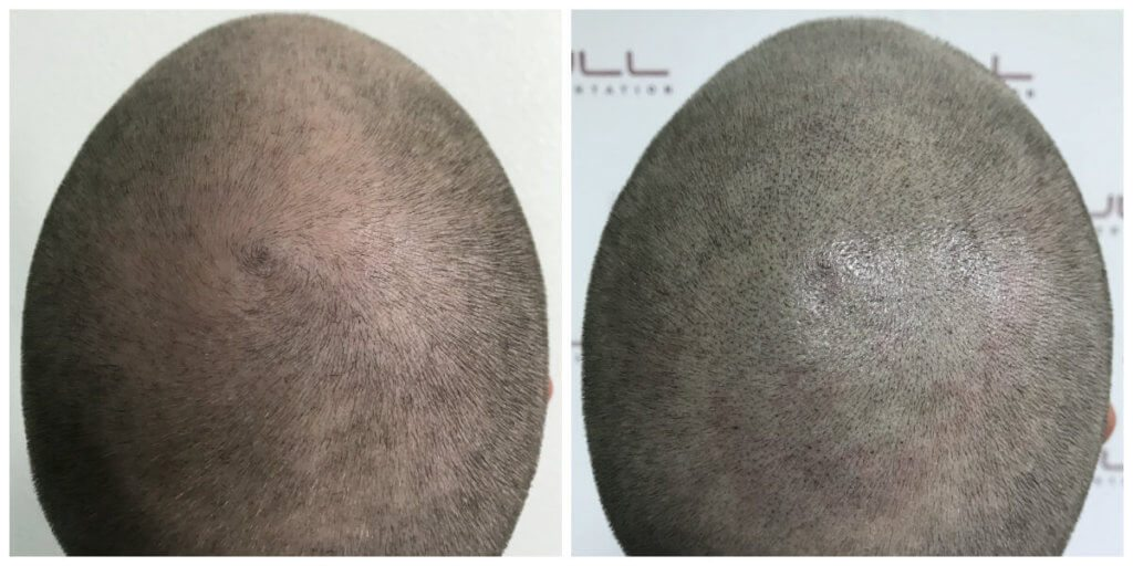 Tyler top before and after micropigmentation