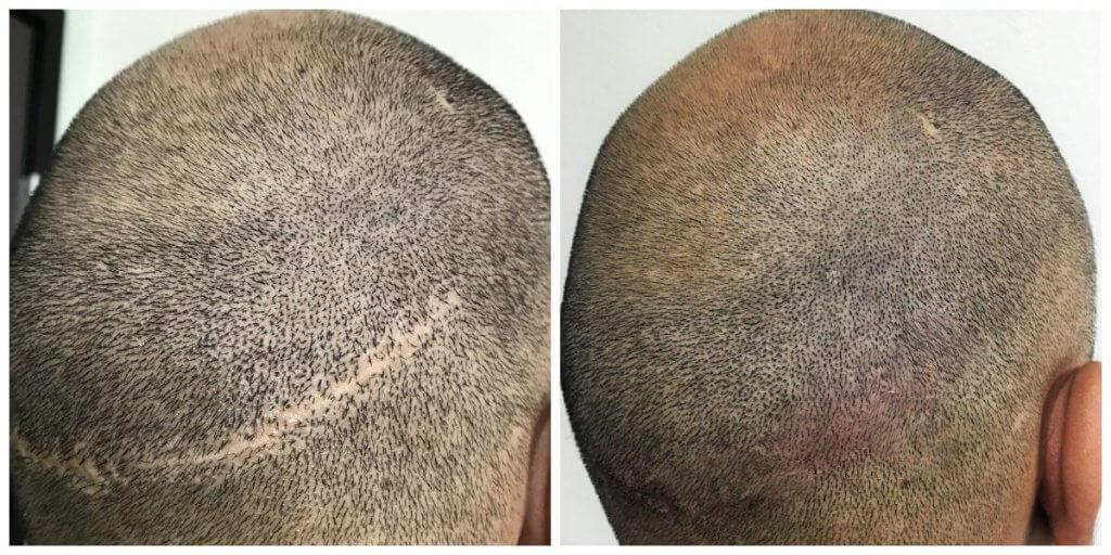 Hair Transplant Scar covering for Jonathon