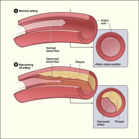 pengertian kolesterol