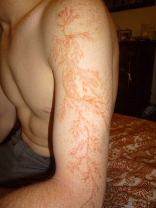 Meet Winston Kemp, Lightning Strike Survivor and Lichtenberg Figure Owner
