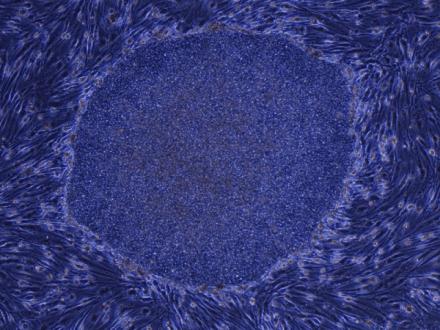 圖為人類 iPS 細胞,來源:http://www.cira.kyoto-u.ac.jp/j/newslist/img/human_iPS.JPG