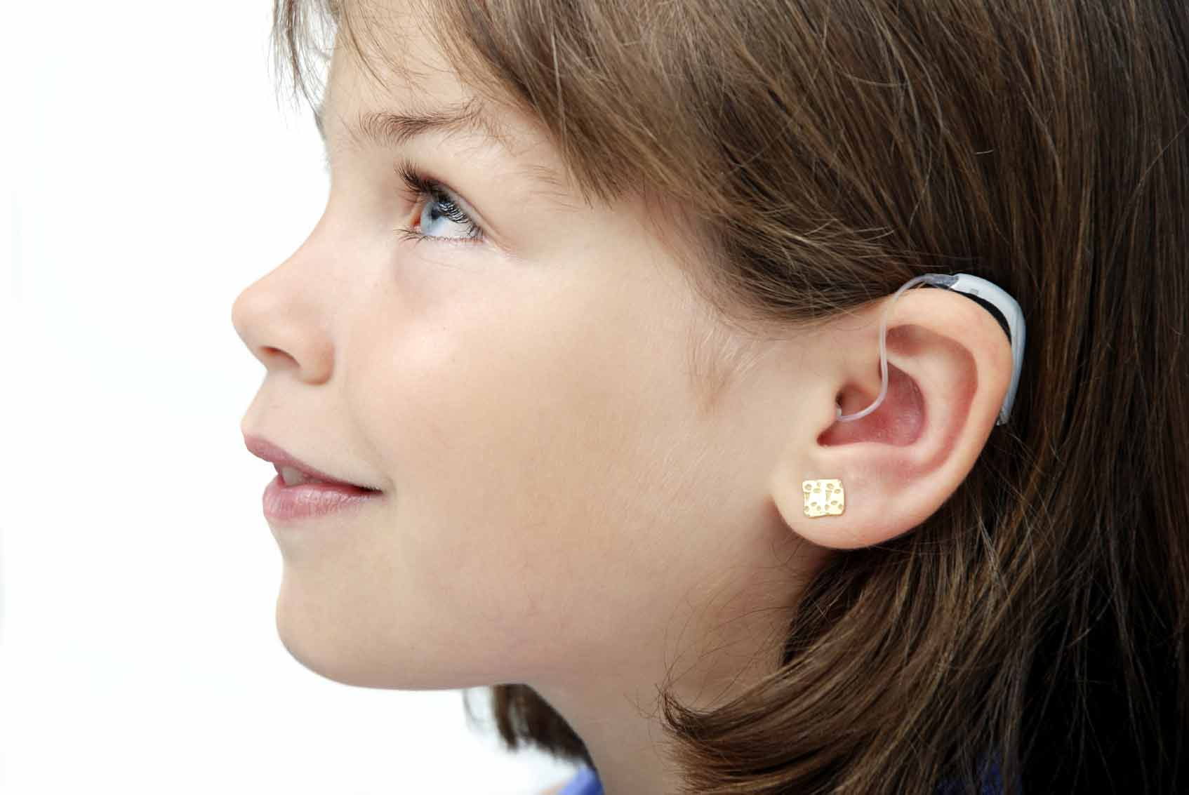 Aparatos Auditivos Assistive Listening Devices Hearing Aids Cochlear