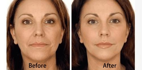estetika-skin-laser-specialists-thermage-facial