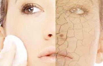 乾燥肌の改善について