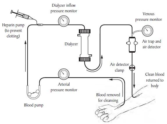 block diagram dialysis machine