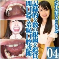 女子大生あこの記録的な数の銀歯を鑑賞!開口器で大羞恥口腔診断 のダウンロード販売