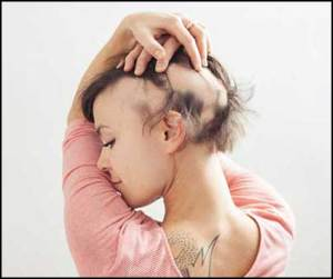 woman_alopecia-cure-blocking-the-immune-system