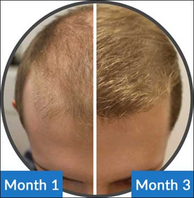 How To Prevent Baldness In Men