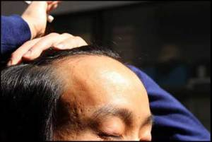 hair-loss-cure-discovered-Japan
