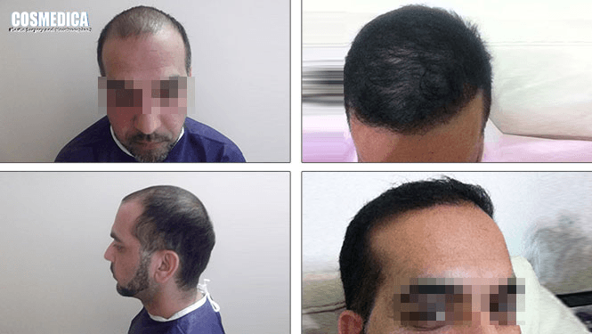 Hair transplant turkey cost forum