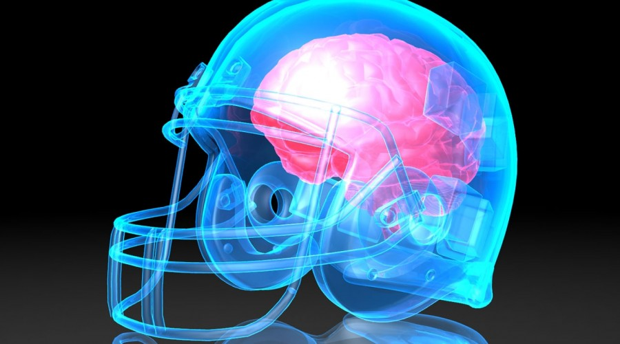 Multiple Concussions in Sports