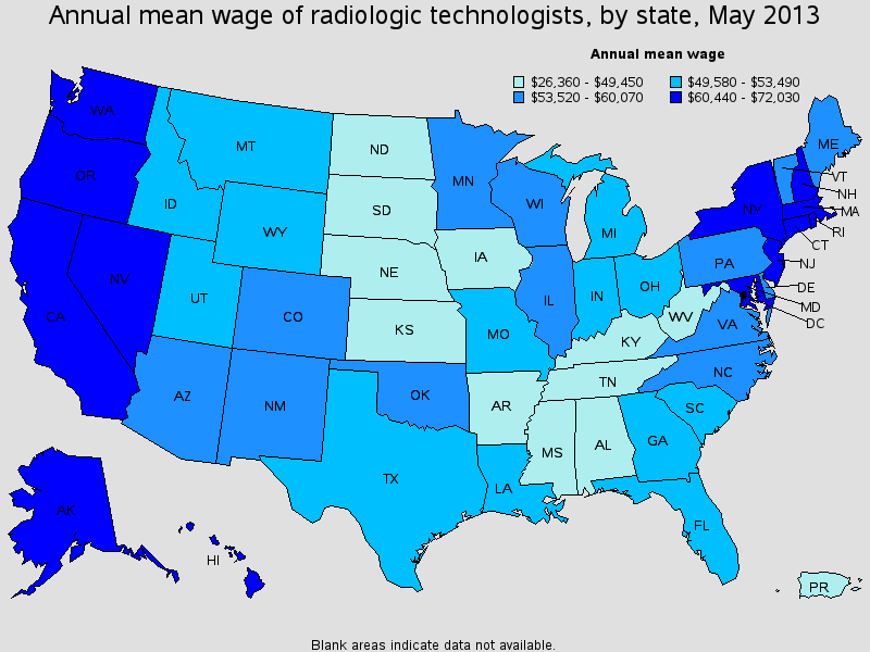 Radiologic Technologist salary state by state