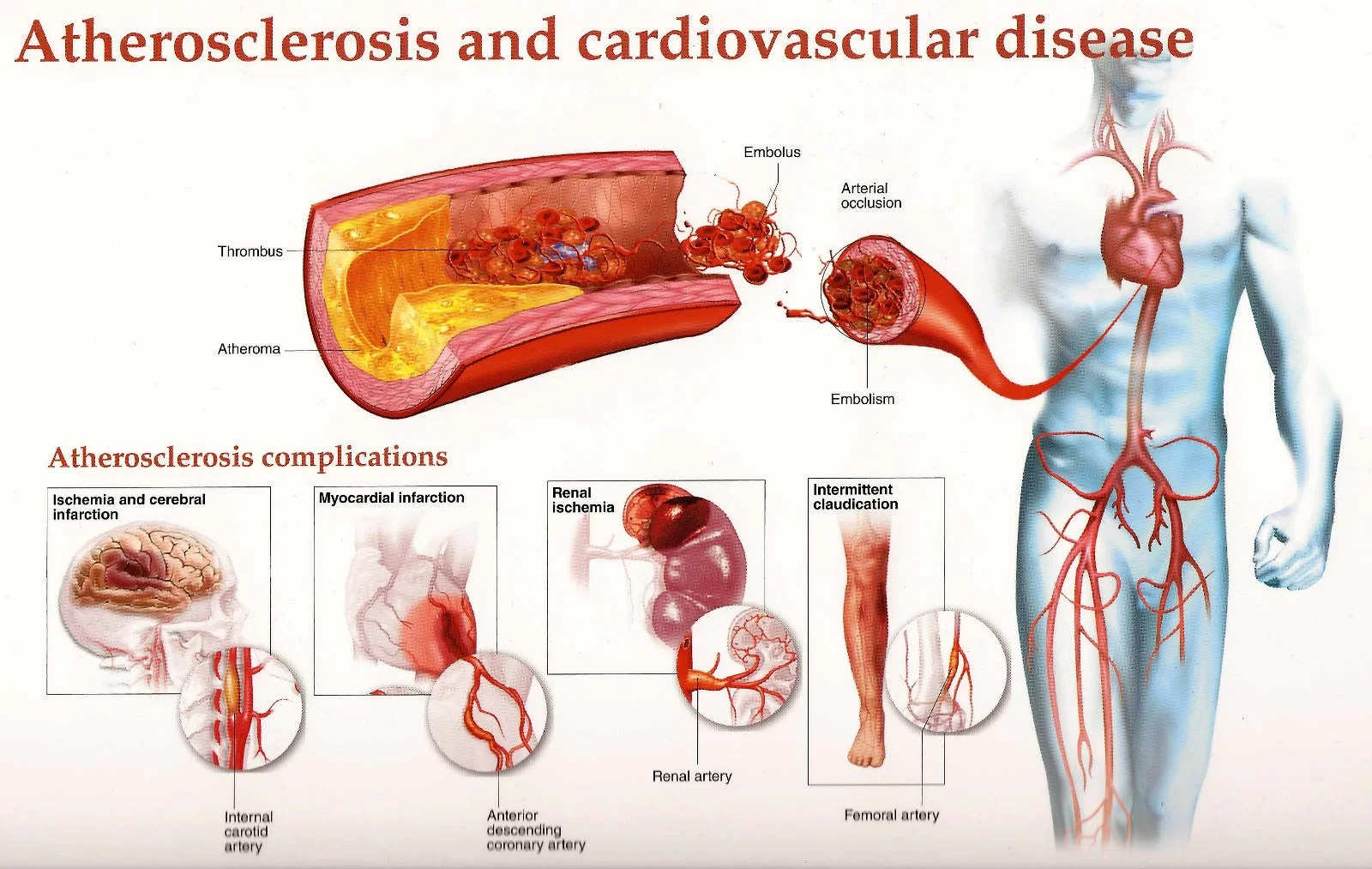 Atherosclerosis - Purify Your Clogged Arteries 2