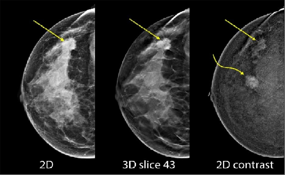 Mammography fusion enhanced by contrast on healthcare-in-europe