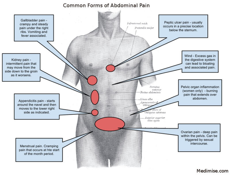 Right, Left and Central Abdominal Pain