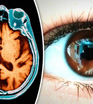 Eyes a Window Into Brain Health