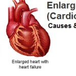 Cardiomegaly: Enlarged Heart Symptoms, Causes and Treatment