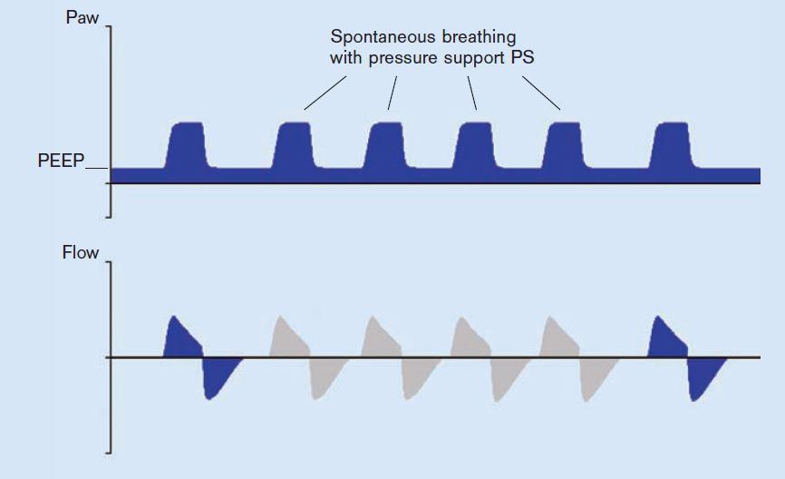 Anesthesia Gas Machine- Ventilators