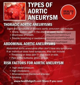 Types of abdominal aneurysms