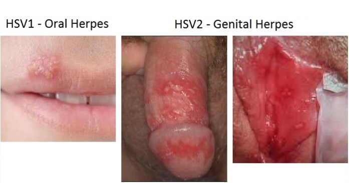pictures of vaginal boils | Sexual Health Facts