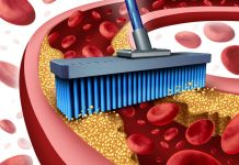 Powerful Foods for Clean Arteries