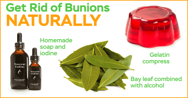 how do you get rid of bunions naturally
