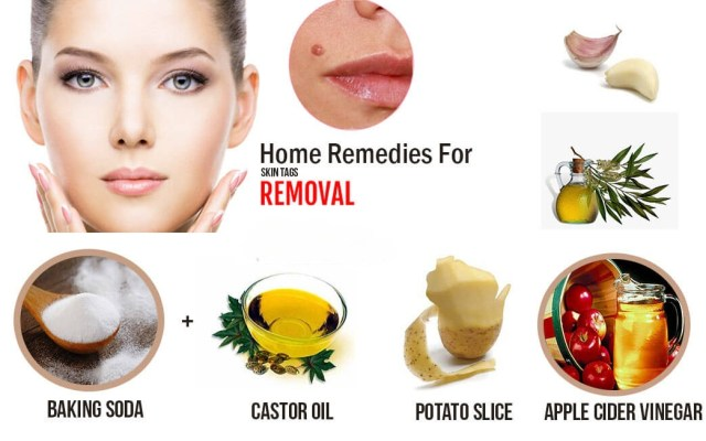Other home remedies to remove skin tags