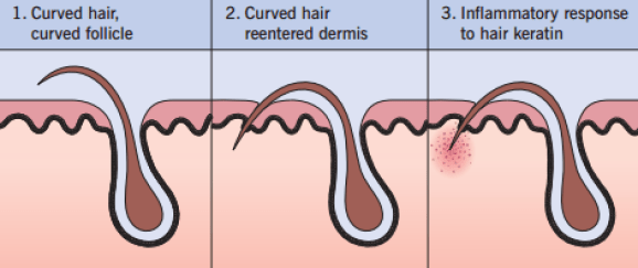 ingrown hair process