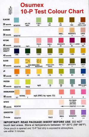 10P Urine Analysis - sample urine color chart