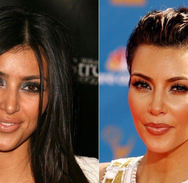 Kim K plastic surgery