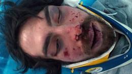 Φωτογραφία σε καλύτερη δυνατή ανάλυση. Ο φοιτητής Αλέξης Λάζαρης τραυματισμένος στο νοσοκομείο ύστερα από επίθεση που δέχτηκε από ομάδα ατόμων την Παρασκευή 31 Μαρτίου 2017, στην περιοχή των Ελληνορώσων. Οι αστυνομικές αρχές συνέλαβαν έναν ύποπτο ως δράστη του ξυλοδαρμού του φοιτητή, που εμφανίζεται να είναι μετακλητός υπάλληλος του γραφείου της Χρυσής Αυγής στην Βουλή, Σάββατο 1 Απριλίου 2017.  ΑΠΕ-ΜΠΕ/www.bloko.gr/STR