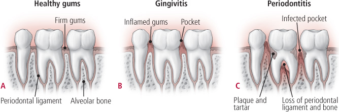 Treating gum disease may lessen the burden of heart disease