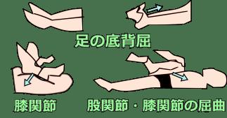 筋の伸張性の検査