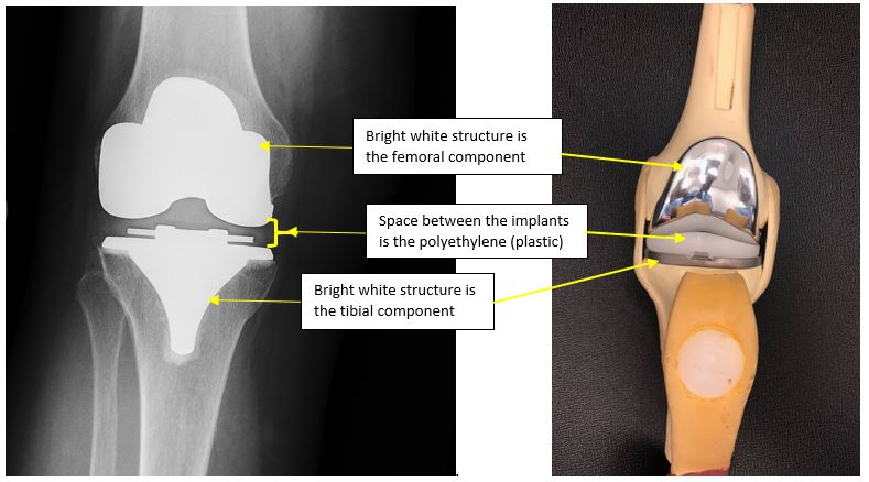 Implants Hip and Knee Care