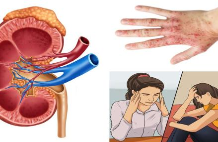 If Your Kidney Is In Danger, The Body Will Give You These 8 Signs!