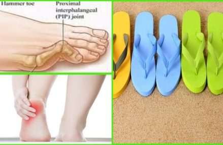 BE CAREFUL: Why Flip-Flops are the Most Dangerous Summer Choice