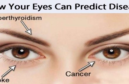 14 Things Your Eyes Can Tell You about Your Health (If you know what to look for)