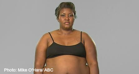 Extreme Weight Loss, Charita